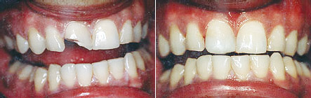 bonded_fillings1 Superb Results