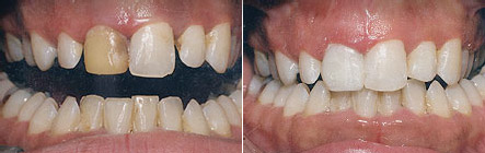 bonded_fillings2 Superb Results