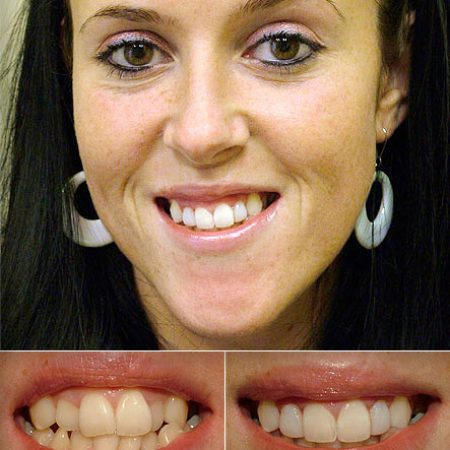 bonded_fillings3 Superb Results