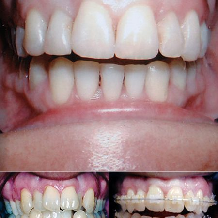orthodontics2 Superb Results