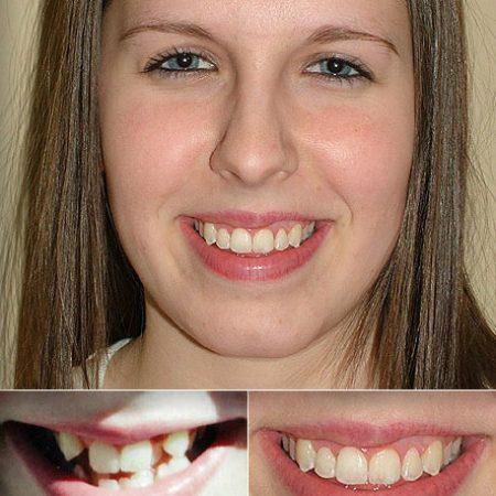 othodontics1 Superb Results