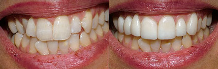 veneers1 Superb Results