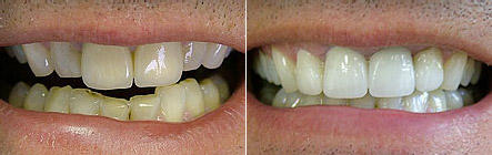 veneers2 Superb Results
