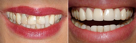 veneers6 Superb Results