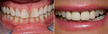 veneers8 Superb Results