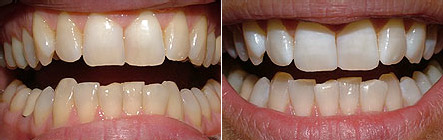 whitening1 Superb Results