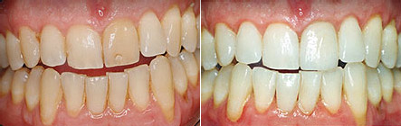 whitening3 Superb Results