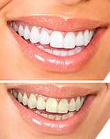 whitening_effects Teeth Whitening Oshawa