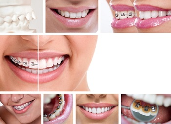 What Your Braces Elastics Colours Say About You Simcoe Smile Dental